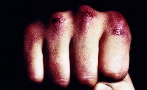 В Саранске мужчины избили и ограбили знакомого